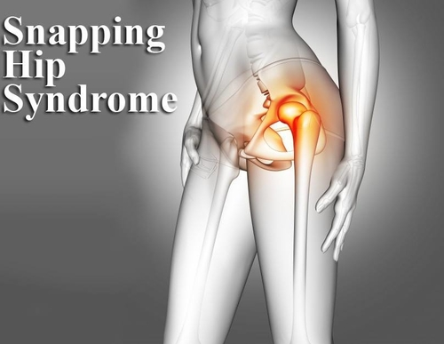 Snapping Hip Syndrome|Dr Nakul Shah|Karve Road ,Pune