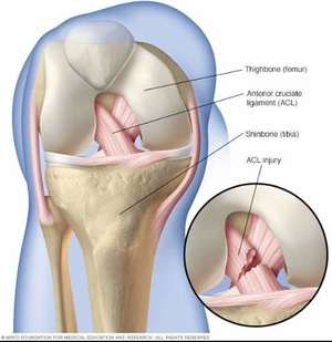 ACL tear is a career-ending SportsInjury