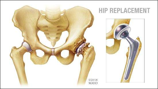 Hip Replacement | Dr Nakul Shah