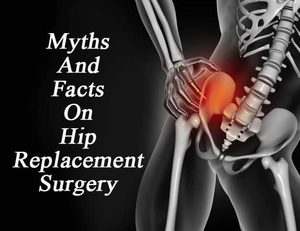 Myths and facts on Hip Replacement Surgery